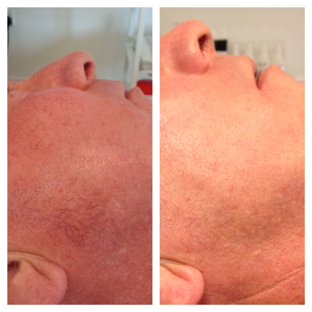 Before & After pics two thread vein treatments